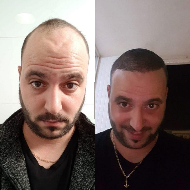 עדי סרור השתלת שיער